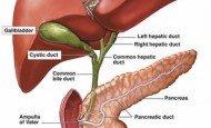 Safra Kesesi Taşı Nedeni, Belirtileri, Bitkisel Tedavisi ve Ameliyatı